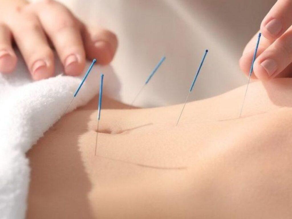 Akupunktur Ne İçin Kullanılmaktadır?
